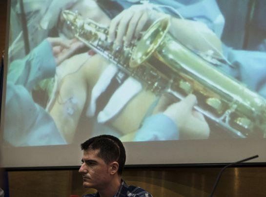 El músico de 27 años Carlos Aguilera frente a las imágenes de su intervención realizada el pasado 15 de octubre en el Hospital Regional de Málaga donde, por primera vez en Europa, se le extirpó un tumor en el que se realizó un mapa de la corteza cerebral del lenguaje musical mientras se mantuvo despierto en la operación y tocó el saxofón para evitar secuelas