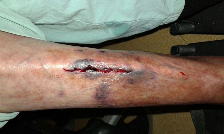 Una residente recibió un golpe y tuvieron que darle 13 puntos de sutura