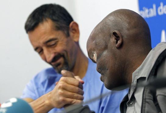 El cirujano reconstructivo Pedro Cavadas (i), estrecha la mano de Mike Koech, durante la rueda de prensa en la que han informado de los resultados tras la operación para reitrarle un ameloblastoma gigante en la base del cráneo que le deformaba la cara.
