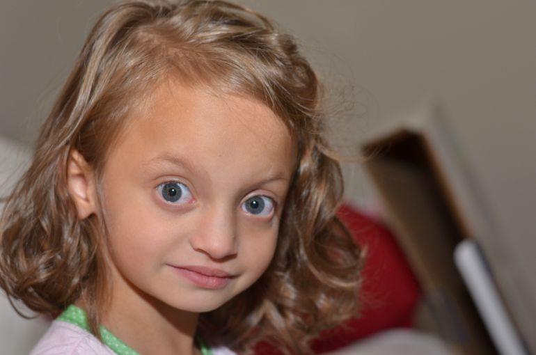 Kendall, una niña afectada por el síndrome de Worlf-Hirschorn