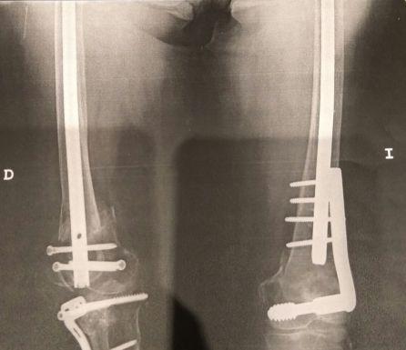 Radiografía de Mercedes tras operarse por rotura de las dos rodillas y un fémur