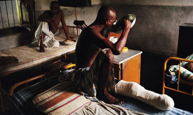 Lepra, la enfermedad olvidada