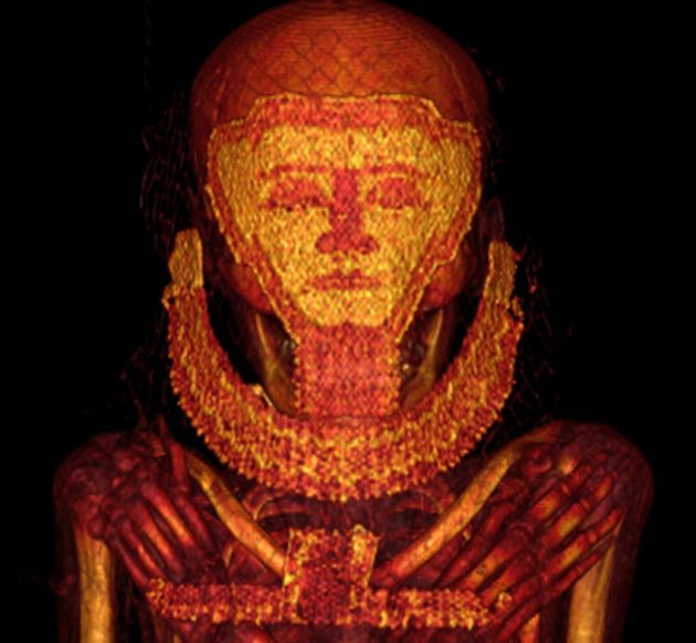 TAC a una momia egipcia con cáncer de mama