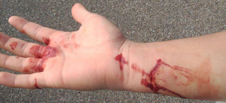 Un menor de edad ha sufrido desgarros en la palma de la mano y en la muñeca, como consecuencia de la mordedura de un perro suelto en la localidad toledana de Torrijos
