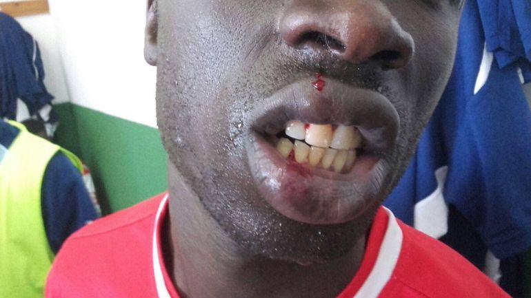El jugador del Alma de África recibió varios puntos de sutura en el labio tras la agresión