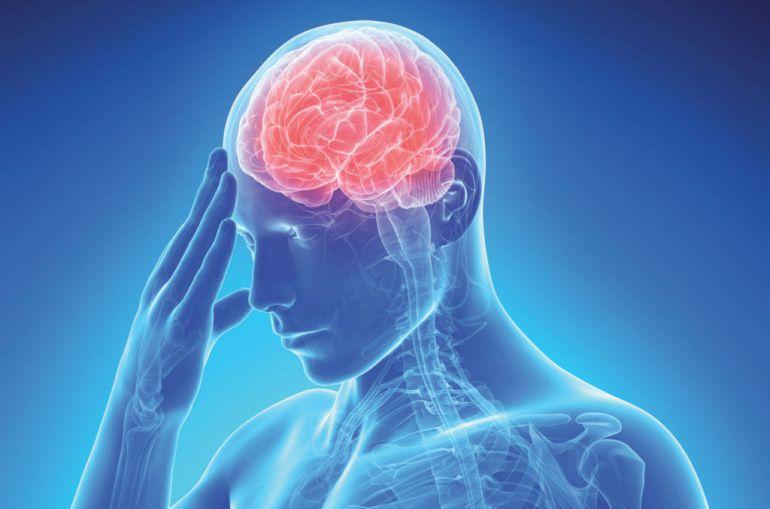 Descoberts nous factors de risc per patir un ictus