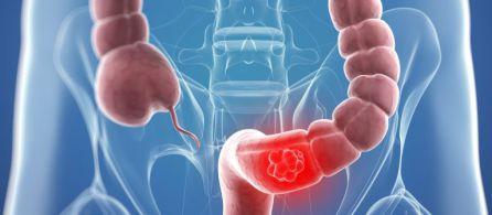 Un estudio relaciona la carne roja con el cáncer de colon
