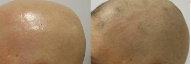 Mujer de 36 años con alopecia areata universal