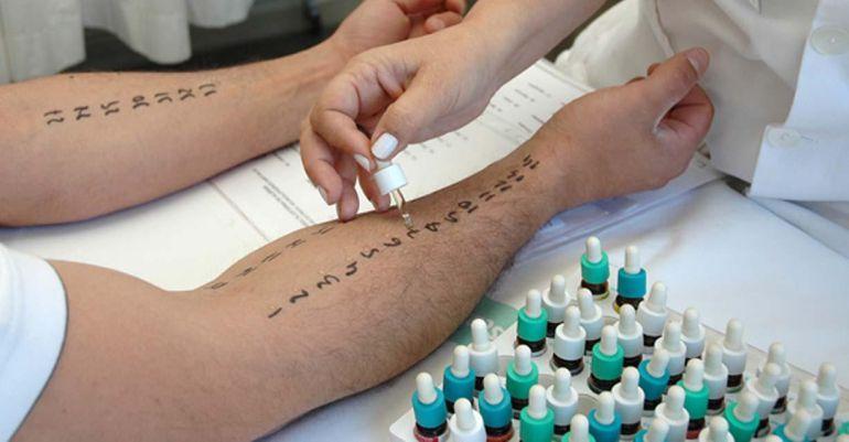 Los pacientes alérgicos tendrán más síntomas durante estos días en la provincia de Jaén