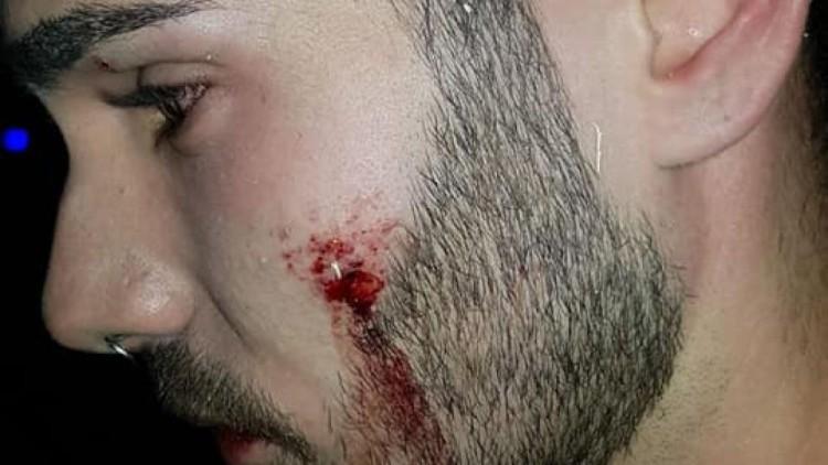 Un joven denuncia una agresión de un portero de discoteca después de besar a su novio