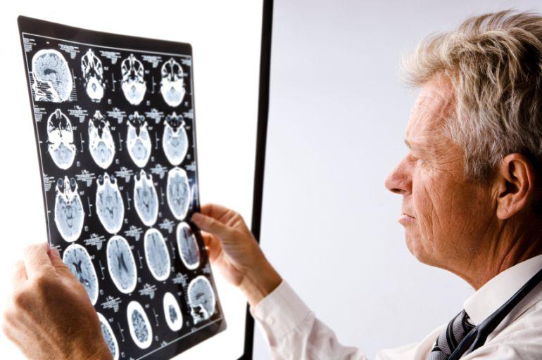 El 53% de los neurólogos tiene dificultades al prescribir fármacos a los pacientes en Canarias