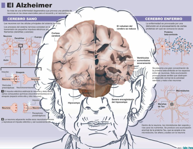 cerebro enfermo frente a uno sano