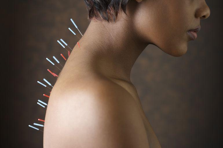 Medicina alternativa, acupuntura, quiromasaje, homeopatía…¿fraude o cura?