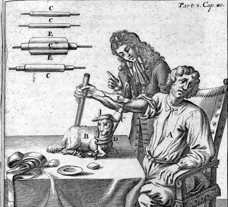 Grabado del doctor Jean Baptiste Denis trasfundiendo sangre de una oveja a un humano
