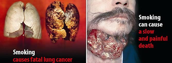 Entre las imágenes se pueden ver operaciones a corazón abierto, tumores en gargantas y pulmones, cadáveres y dientes podridos todas ellas acompañadas de eslóganes de advertencia