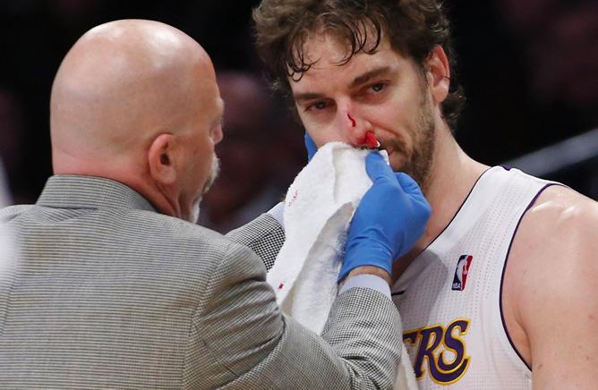El español sufrió un golpe en la nariz en una acción contra JaVale McGee, de los Denver Nuggets