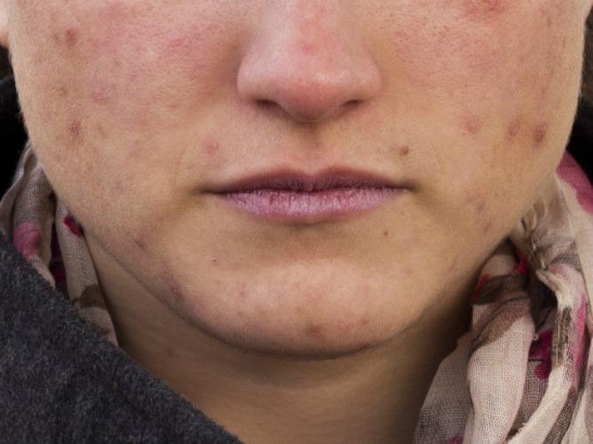 Científicos españoles patentan un tratamiento efectivo contra el acné