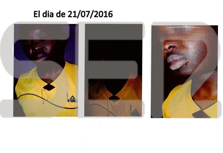 Un refugiado africano muestra las secuelas de la agresión que sufrió dentro del centro de Dianova el pasado mes de julio