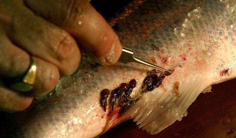 Como es posible arreglar los parásitos en el organismo