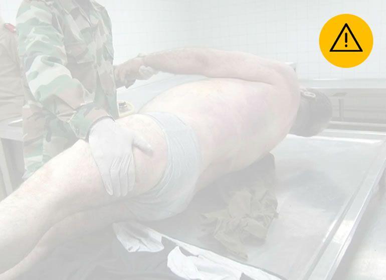 FOTOGALERÍA | (AVISO: Las imágenes pueden herir su sensibilidad) Fotos de sirios torturados en centros de detención ilegal