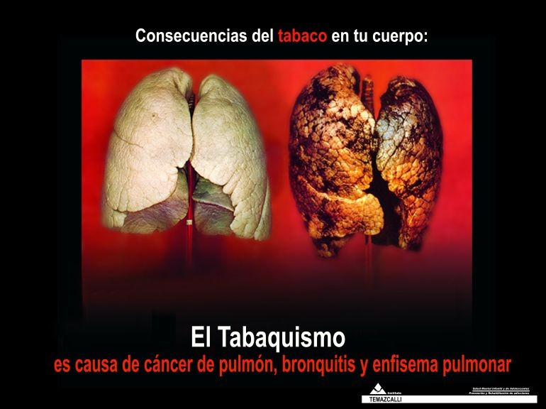 imagenes que aparecen en las cajetillas de tabaco con la nueva normativa