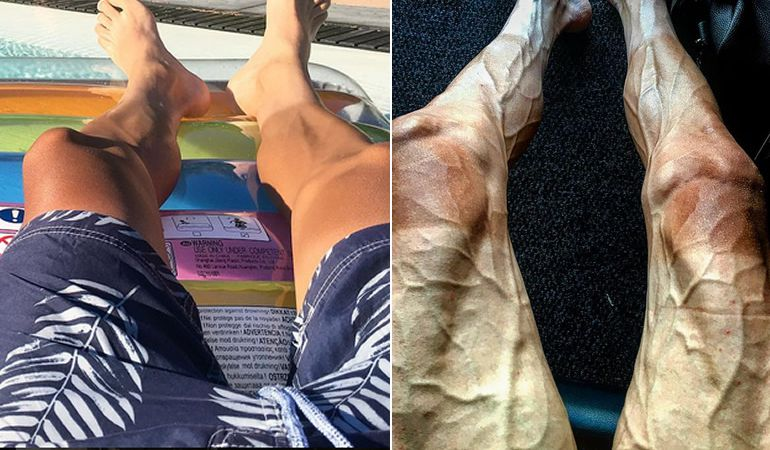 Imagen comparativa de las piernas de Pawel Poljánski durante el Tour y en otra etapa del año