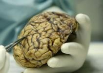 Identificada una nueva molécula multipotente para tratar el Alzhéimer