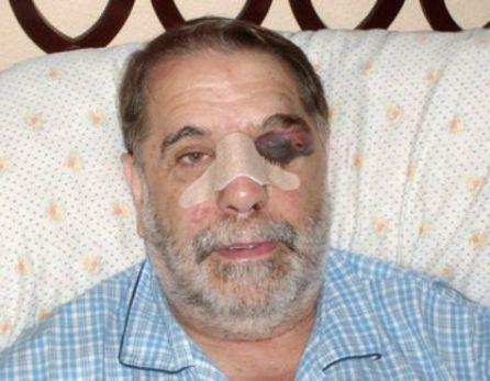 Imagen de González tras ser agredido publicada por El País en 2010