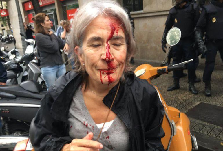 Mujer herida a las puertas de la escuela Infant Jesús de Barcelona, el 1 de octubre.