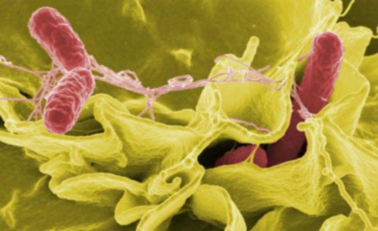 La fiebre tifoidea está causada por una bacteria muy contagiosa que se transmite a través de alimentos y agua infectada.