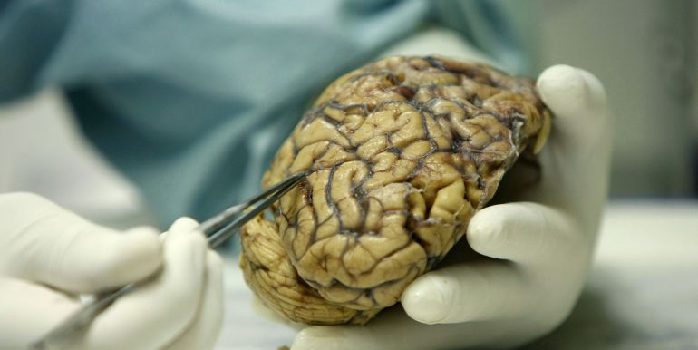 El glioblastoma es el tumor cancerígeno que más afecta al cerebro y uno de los más agresivos, porque sólo tiene una esperanza de vida de 14 meses en los pacientes afectados.