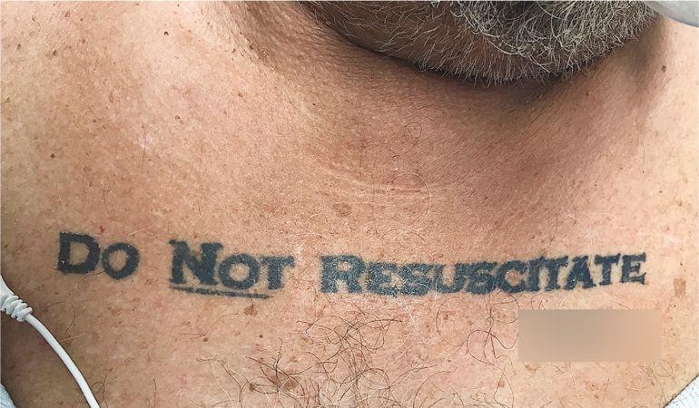 El tatuaje del paciente.