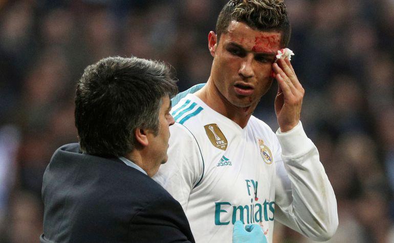 Cristiano recibe asistencia médica en el partido entre el Real Madrid y el Deportivo