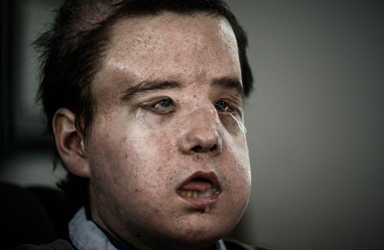 Por primera en la historia un hombre se somete a dos trasplantes de cara