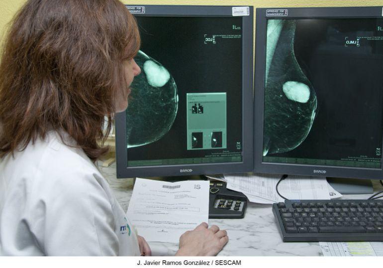 La inmunoterapia que ha conseguido acabar por primera vez con un cáncer de mama no está lista para extender su uso