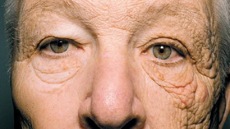 La foto que muestra el devastador efecto del sol en la piel