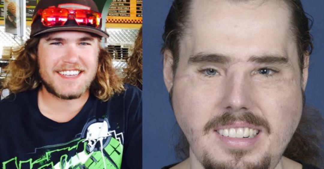 Un trasplante de cara le devolvió la sonrisa tras dos años