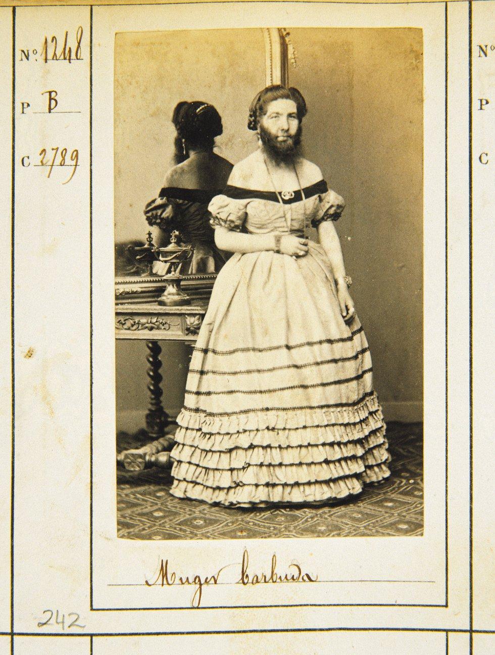 Mujer barbuda. Museo de Historia de Madrid