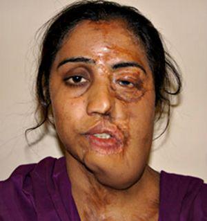 Sólo En Pakistan Hay 4 Millones De Víctimas Atacadas Por