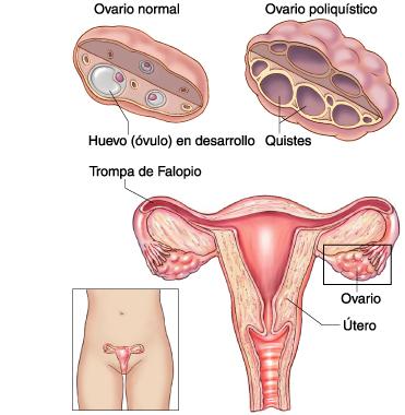 es malo tener quiste en el ovario