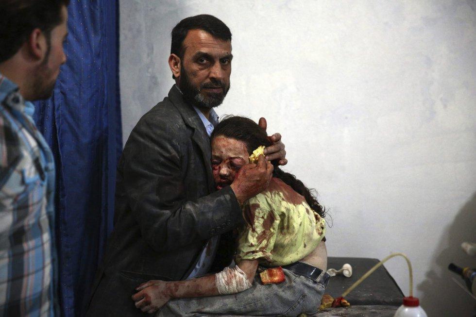 Fotografía de la serie ganadora del segundo premio de la categoría de temas de actualidad de la 59 edición del World Press Photo, tomada por el fotógrafo Abd Doumany. La fotografía muestra a un niña siria herida que espera abrazada a su padre a ser atendida en un hospital en la ciudad de Douma (Siria) el 11 de mayo de 2015.