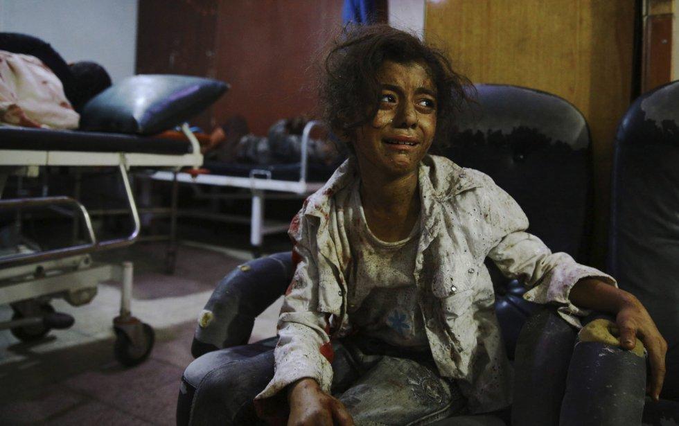 Fotografía ganadora del segundo premio de la categoría de temas de actualidad de la 59 edición del World Press Photo, tomada por el fotógrafo Abd Doumany. La fotografía muestra a una niña siria llorando en un hospital de Douma, al este de Damasco (Siria) el 12 de agosto de 2015.