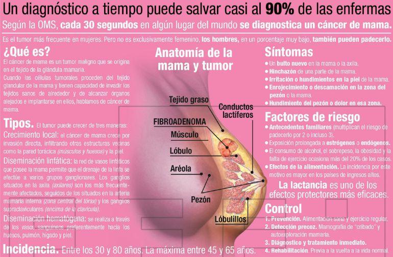 que es cancer de mama)
