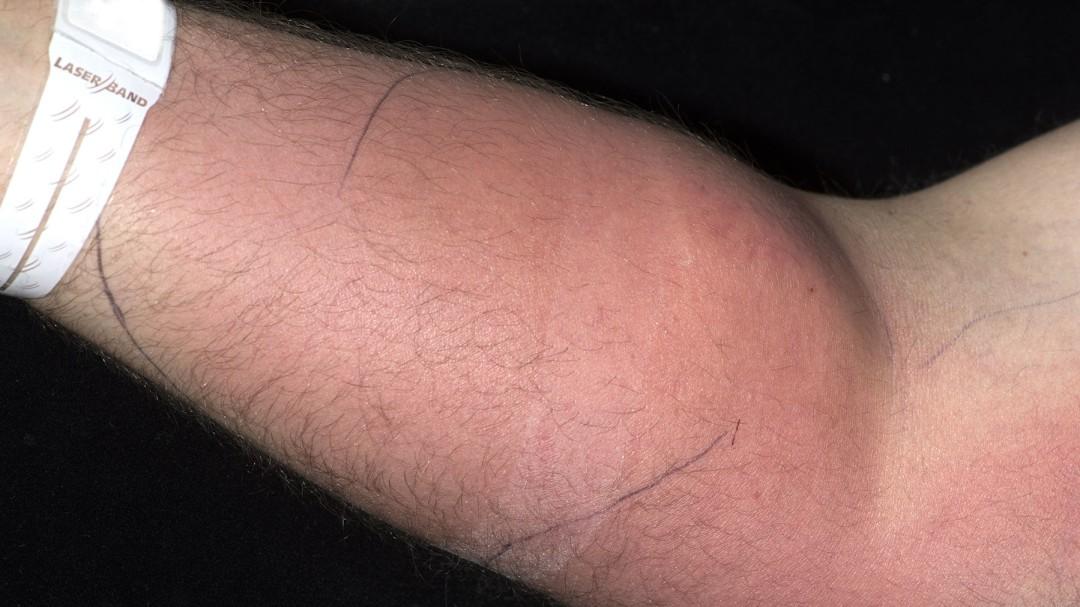 Un joven se inyectó su semen en el brazo para curarse el dolor de espalda