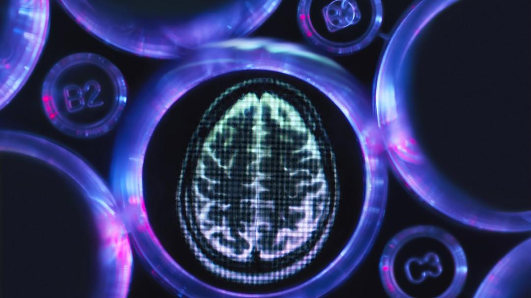Un análisis de sangre detecta el daño cerebral del alzhéimer antes de que aparezcan sus síntomas