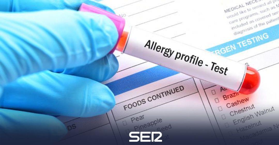 diabetes y alergias