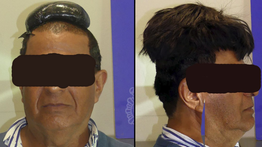 Detenido un hombre en El Prat por intentar ocultar medio kilo de cocaína bajo su peluquín