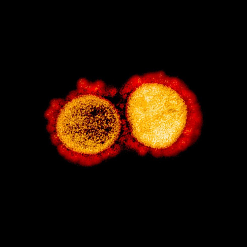 Transmisión de partículas del virus SARS-CoV-2, aislada de un paciente.