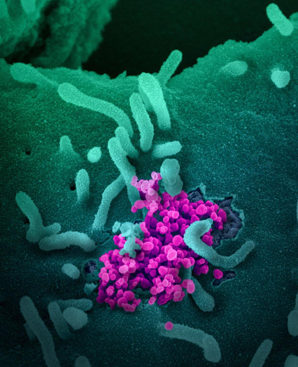 Esta imagen de microscopio electrónico del Instituto estadounidense de Alergia y Enfermedades Infecciosas (NIAID), coloreada digitalmente, muestra el SARS-CoV-2, también conocido como 2019-nCoV, el virus que causa COVID-19, aislado de un paciente de EE.UU., mientras las partículas de virus (con forma redonda y color magenta) emergen de la superficie de las células cultivadas en laboratorio en Hamilton / Montana (Estados Unidos de América), a 13 de febrero de 2020. CORONAVIRUS;COVID-19;ESTADO DE ALARMA;PANDEMIA;LABORATORIO;NIAID; NIAID-RML  (Foto de ARCHIVO)  13/02/2020