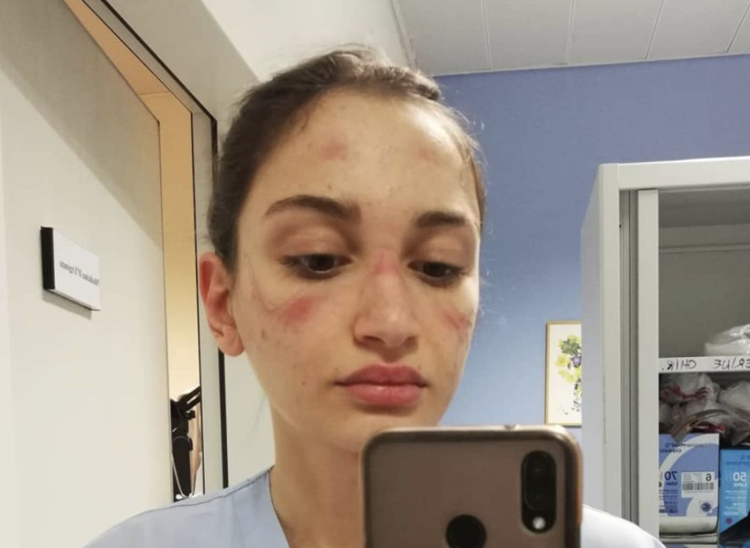 Alessia Bonari, la sanitaria italiana que se hizo viral al denunciar las heridas que sufría